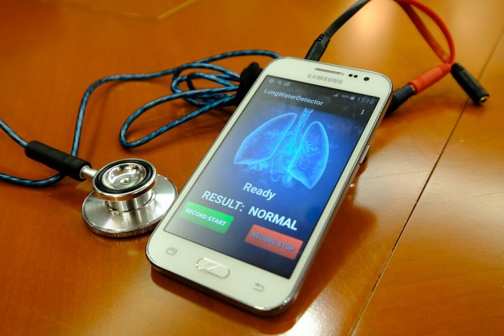 NTU SingaporeTTSH Develops AI based Smart Medical Device for Early Detection of Congestive Heart Failure
