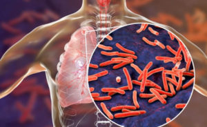 Gates Foundation Forms an Alliance with Global Pharma Companies to Develop PAN-TB Drug Regimen for Tuberculosis
