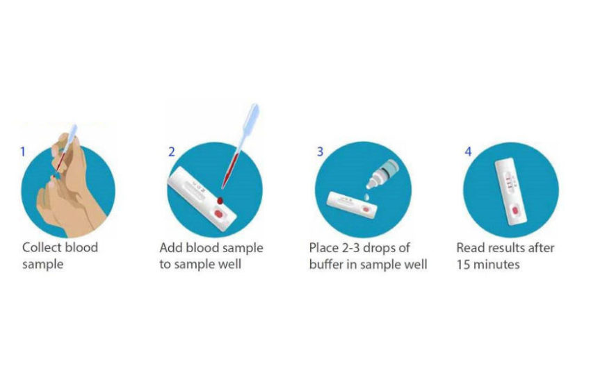 BD and BioMedomics Launch Rapid Serology Test to Detect Exposure to COVID-19 in 15 Minutes
