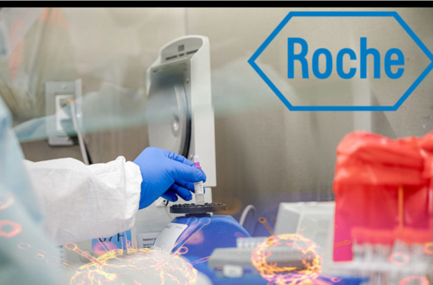Roche Develops Elecsys Anti-SARS-CoV-2 Serology Test to Detect Ab Against COVID-19