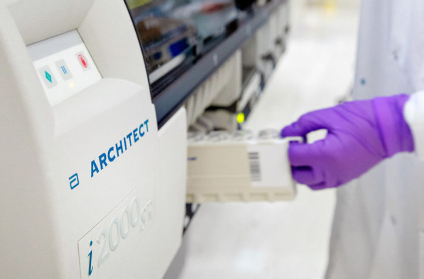 Abbott Launches its Third Test to Detect COVID-19