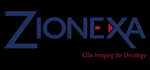 Zionexa And Petnet Solutions' Cerianna (Fluoroestradiol F 18) Receive the US FDA's Approval for Advancing Treatments in Metastatic Breast Cancer Patients
