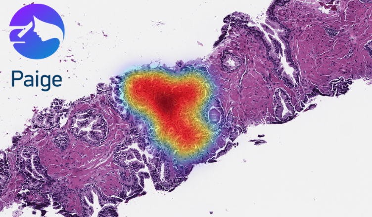 Paige Secures Funding from Goldman Sachs to Continue Innovation in Digital Pathology
