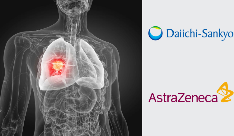AstraZeneca Collaborates with Daiichi Sankyo to Evaluate the Combination of Patritumab Deruxtecan (U3-1402) + Tagrisso for EGFR-Mutated Non-Small Cell Lung Cancer