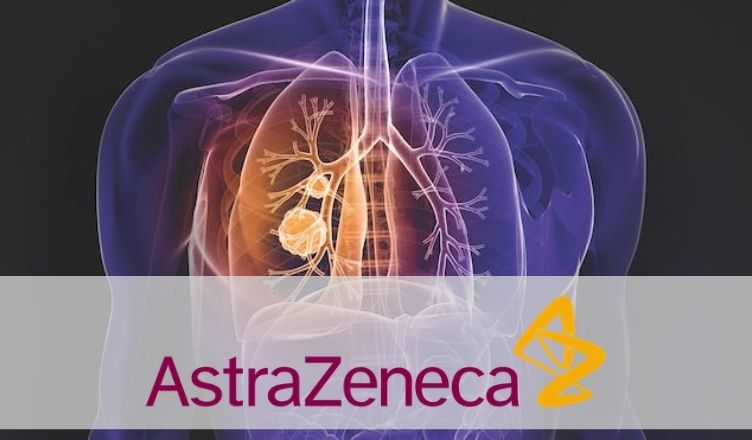 AstraZeneca's Imfinzi (durvalumab) Receives MHLW's Approval for Extensive-Stage Small Cell Lung Cancer