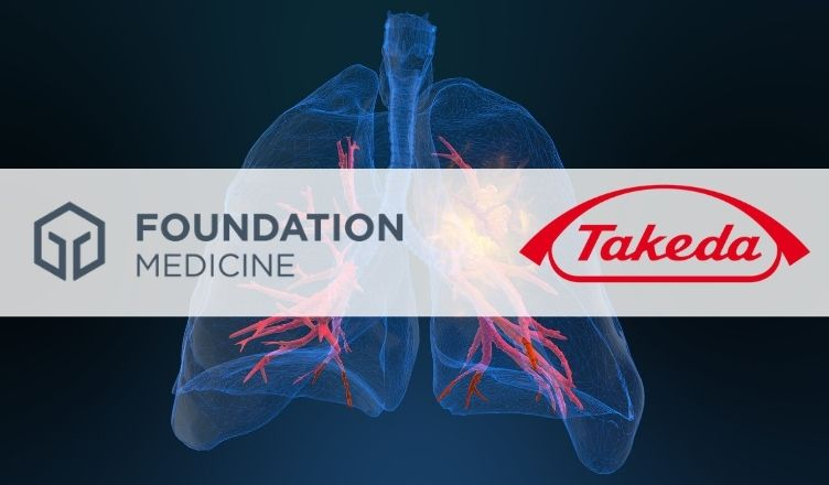 Takeda Collaborates with Foundation Medicine for Lung Cancer CDx