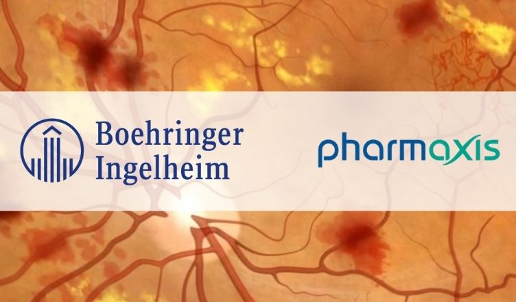 Boehringer Ingelheim and Pharmaxis Halt the Development of BI 1467335 for Diabetic Retinopathy