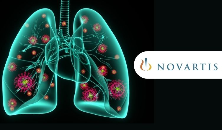 Novartis' Ilaris (canakinumab) Fails to Meet its Primary Endpoints in P-lll Study for COVID-19 Pneumonia and CRS