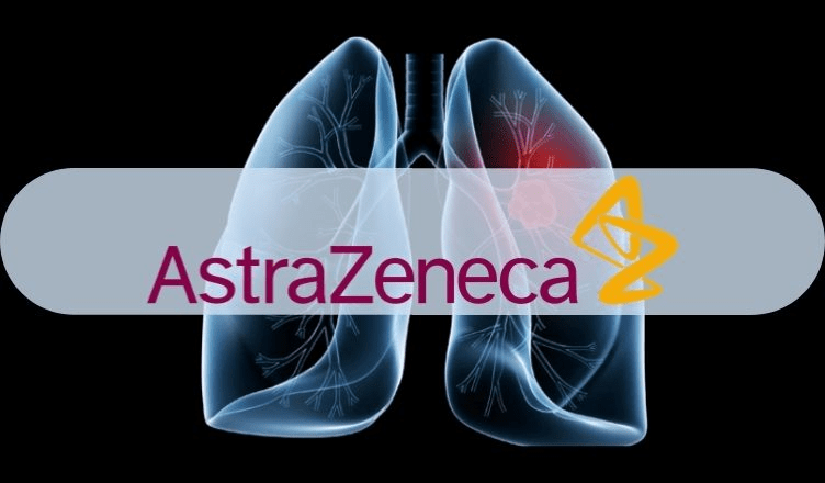 EMA's CHMP Recommends Four-Week Dosing Option for AstraZeneca's Imfinzi to Treat Unresectable NSCLC