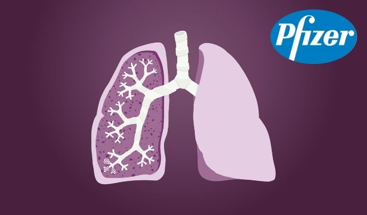 Pfizer Report the US FDA's Acceptance and Priority Review of sNDA for Lorbrena (lorlatinib) to treat (ALK)-Positive (NSCLC)