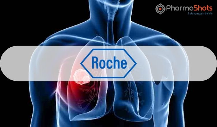Roche Reports the US FDA's Acceptance of sNDA and Granted Priority Review for Esbriet (pirfenidone) to Treat UILD