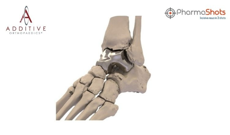 The US FDA Approves Patient Specific Talus Spacer to Treat AVN of Ankle Joint as a Humanitarian Use Device